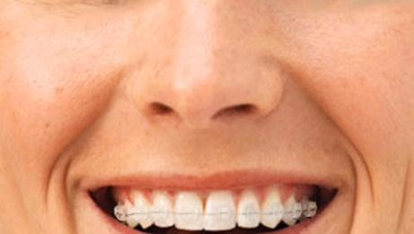 Metal-free orthodontic treatments
