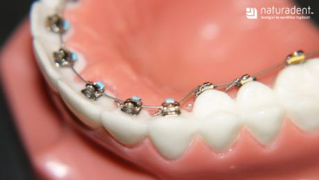 Aesthetic orthodontics