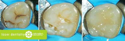 caries treatment with laser